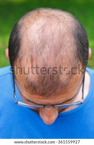 Head close-up of balding men - stock photo