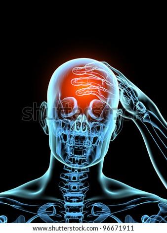 Headache 3D Xray Model - stock photo