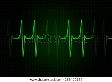 Health Concept with Heart rate - Cardiac Frequency in red Colour - stock photo