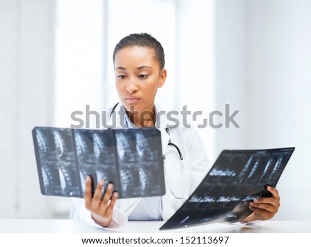 healthcare, medical and radiology concept - african doctor looking at x-rays - stock photo