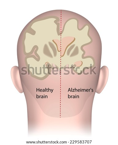 Healthy brain vs. Alzheimer's brain - stock photo