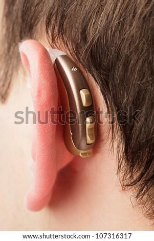 Hearing aid on the man's ear closeup - stock photo