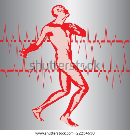 Heart Attack Bitmap Background - stock photo