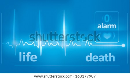 heart beats cardiogram and asystole on the medical monitor - stock photo