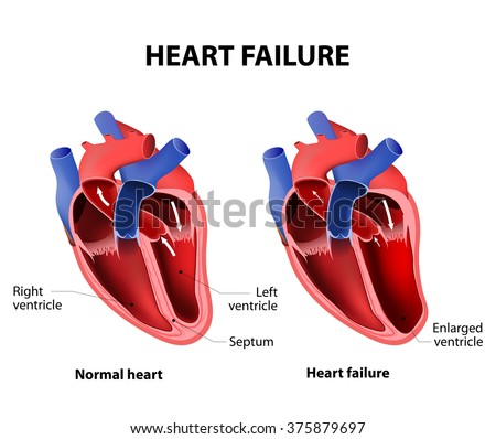 Heart failure or congestive heart failure - stock photo