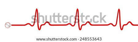 Heart monitor (Electrocardiogram, ECG or EKG) isolated on white background - stock photo