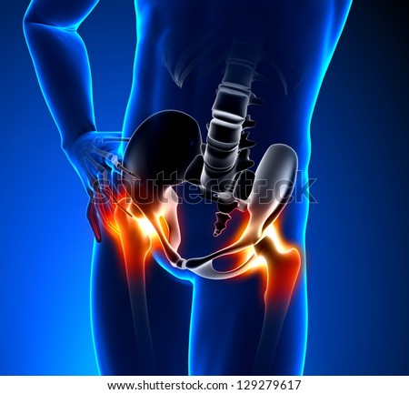 Hip joint Stock Photos, Images, & Pictures | Shutterstock