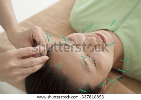 Hit the acupuncture in the face of woman - stock photo