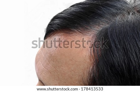 Human alopecia or hair loss problem and grizzly , shot from side view on white background - stock photo