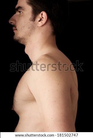 Human anatomy series: Adam;s apple - stock photo