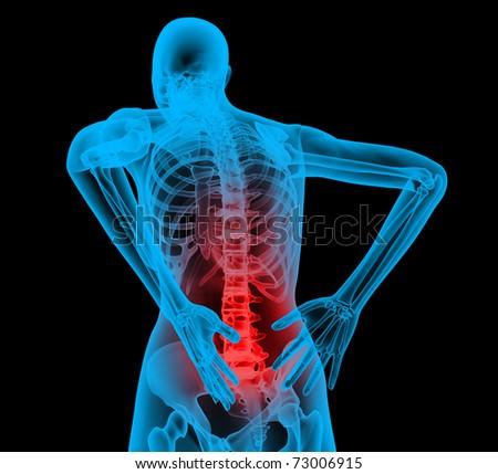 Human backbone in x-ray view, Back Pain, Backache - stock photo