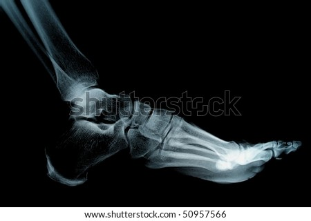 human foot ankel and leg xray picture - stock photo