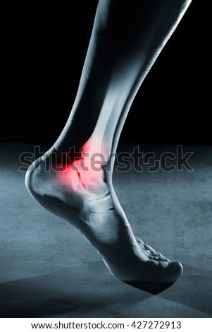 Human foot ankle and leg in x-ray, on gray background. The foot ankle is highlighted by red colour. - stock photo