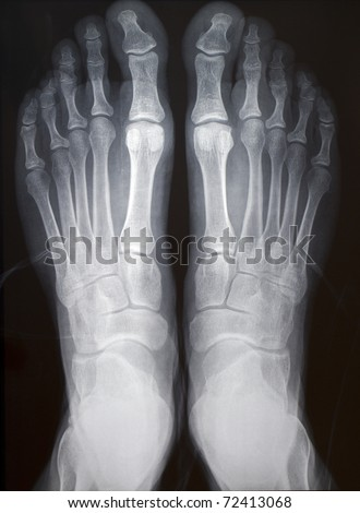 human right and left foot ankle xray picture (top view) - stock photo