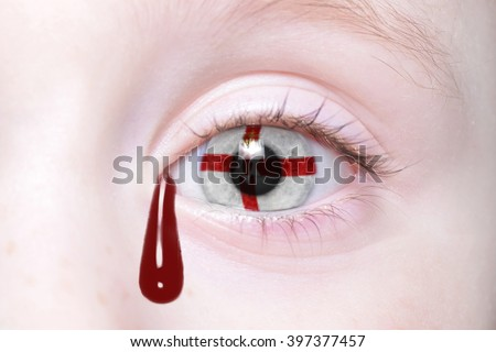 human's eye with national flag of northern ireland with bloody tears. concept - stock photo