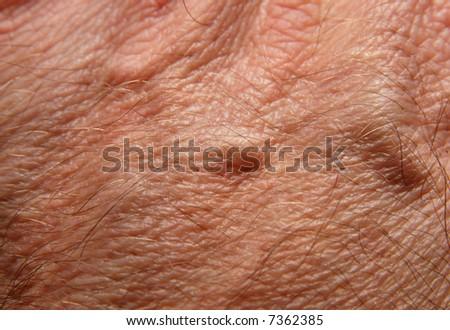 Human skin - stock photo