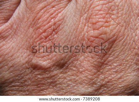 Human skin in close up - stock photo