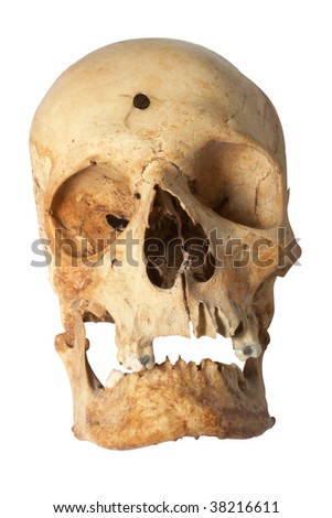 Human skull, with bullet hole - stock photo