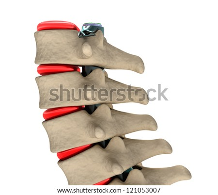 Human Spine, 3D illustration - stock photo