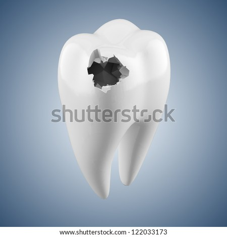 human tooth with caries isolated on a white background - stock photo