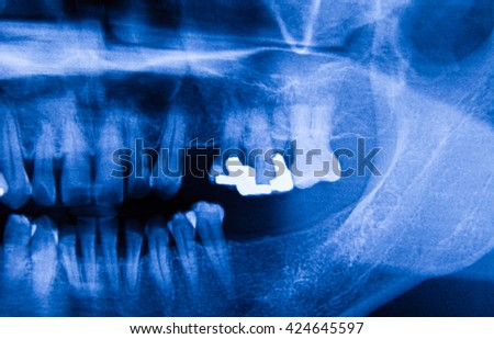 Human X-ray film in the hospital - stock photo