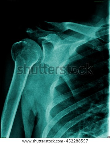 Human x-ray right shoulder fracture at head of humerus ( arm bone ) with other structure, rib, clavicle, shoulder joint, right side of lung in blue tone  - stock photo
