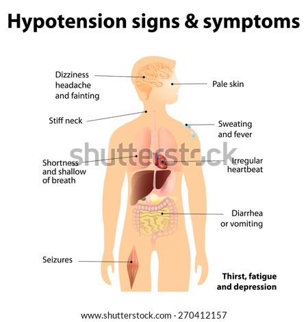 Hypotension signs & symptoms. Low blood pressure symptoms - stock photo