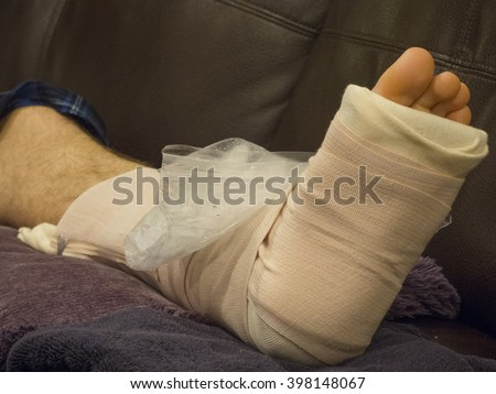 Ice Pack on  Broken Ankle - stock photo