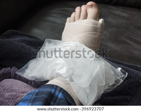 Icing Broken, Fractured or Sprained Foot or Ankle in Cast - stock photo