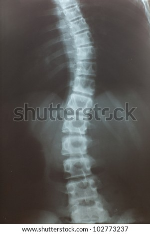 idiopathic scoliosis, last stage, deformation ribs - stock photo
