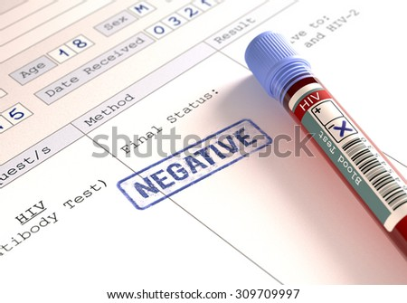 Image concept with the result of the HIV test. - stock photo