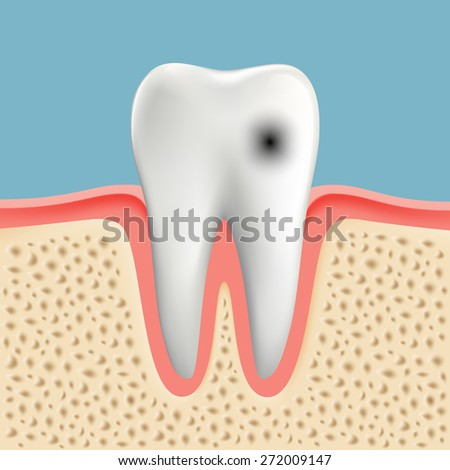 image of a human tooth with caries - stock photo