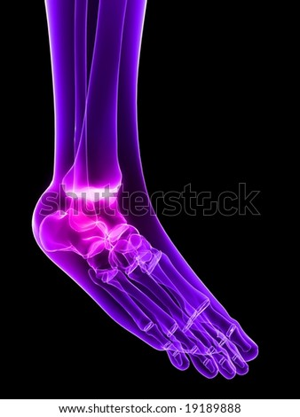 inflammated ankle - stock photo