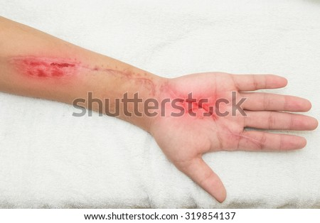 inflammation  wound in the forearm - stock photo