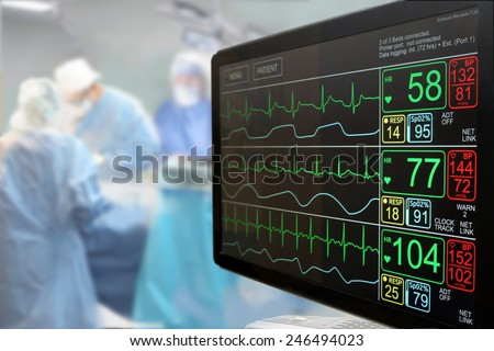 Intensive care unit (ICU) LCD monitor with an ongoing surgery in background - stock photo