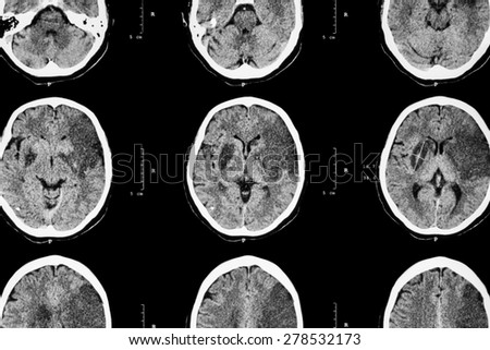 Ischemic stroke : ( CT of brain show cerebral infarction at left frontal - temporal - parietal lobe ) ( nervous system background ) - stock photo