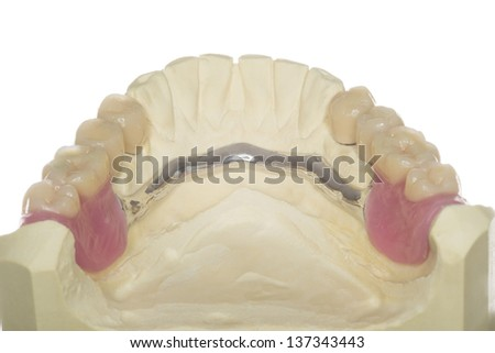 isolated denture from an dental laboratory - stock photo