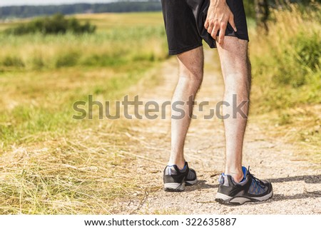 Jogger having muscle pain - stock photo