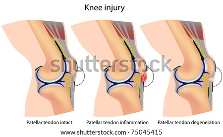 Jumper's knee anatomy - stock photo