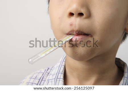 Kid has a herpes on mouth and measuring the fever by thermometer - stock photo