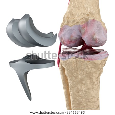 Knee and titanium hinge joint. Isolated on white - stock photo