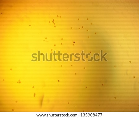 Lancet liver fluke eggs (Dicrocoelium dendriticum) - permanent slide plate under high magnification - stock photo
