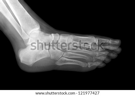 Left foot x-ray isolated on black background. - stock photo