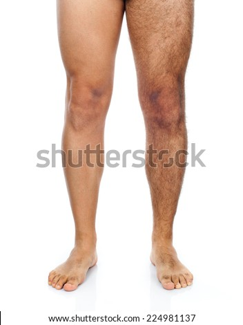 Legs of a man, his right leg is shaved while the left very hairy. - stock photo