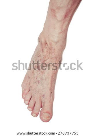 Legs with varicose veins. Close-up view - stock photo