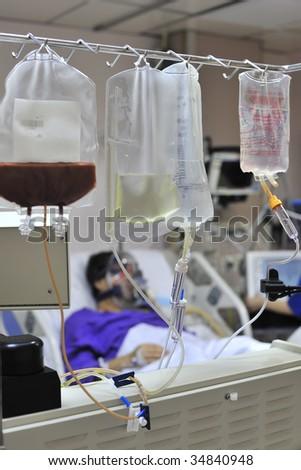 leukapheresis - stock photo