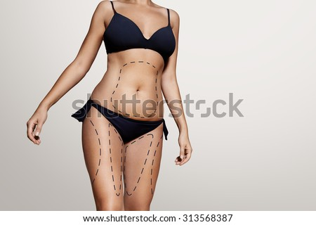 liposuction lines on a woman's body - stock photo
