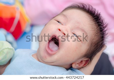 Little asian newborn with candidiasis on tongue - stock photo