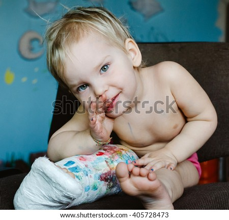 Little child with broken leg. Lifestyle portrait at the home. - stock photo