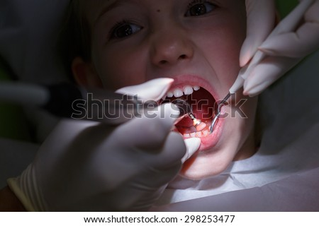Little girl at paediatric dentists office, getting her teeth polished with prophylactic paste by her dentist. Early prevention, oral hygiene, fear of dentist and milk teeth care concept.   - stock photo